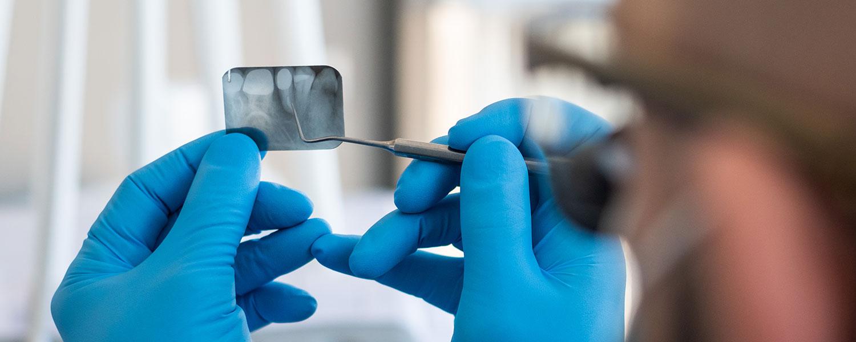 Ein Zahnarzt schaut sich ein Röntgenbild eines Zahns an